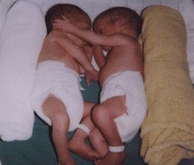 twins copy